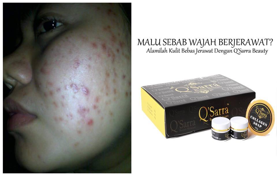 Cara Nak Hilangkan Jerawat dan Jeragat Dgn Q'Sarra Beauty SkinCare ...