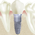 Dental Implants:  The Game Changer