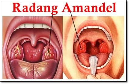 Obat Radang Amandel Herbal