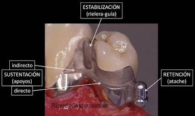 atache de corona dental protesis fija