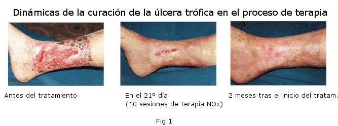 Los medios públicos del tratamiento varikoza de las extremidades inferiores