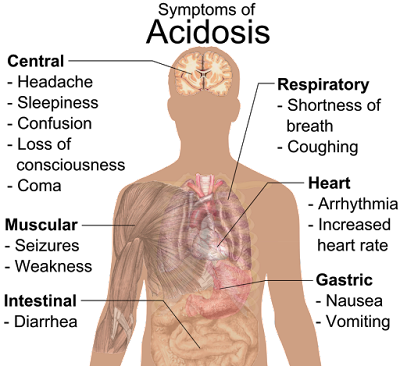 Acidosis  - அஸிடோஸிஸ் Treatment & management
