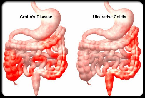 Crohn S Disease Causes Symptoms Diagnosis And Treatment