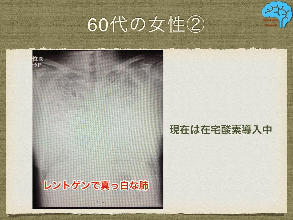 肺胞微石症 胸部レントゲン