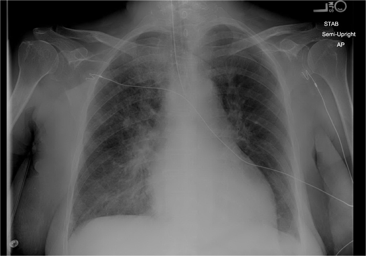 Cardiogenic Pulmonary Edema X Ray