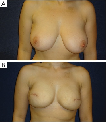 Ταυτόχρονη μαστεκτομη και αναπλαση με θυσία της θηλης λόγω εγγυτητας του όγκου και επιθυμία μείωσης