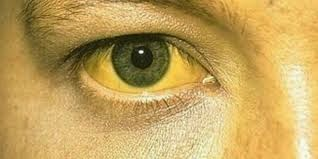 Obat Herbal Demam Kuning