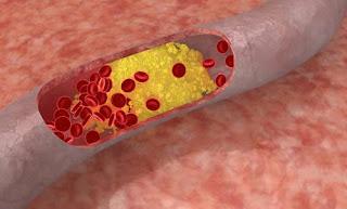 """""""solusi-cara-mengatasi-kolesterol-terapi-penyembuhan-kolesterol-ldl-produk-kesehatan-herbal-natural-nusantara-nasa-lecithin-hu-whang-tea-chlorophyllin-amne-asam-amino-cordymune-serbuk-beras-merah-inti-herbalindo"""""""