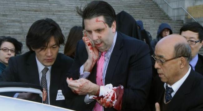 Atacan con cuchillo a embajador de EE.UU. en Corea del Sur