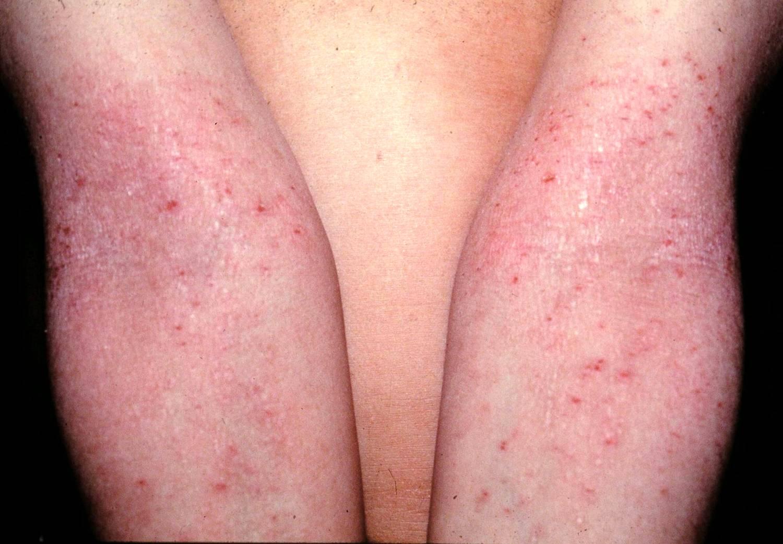 Como curar la psoriasis estacional