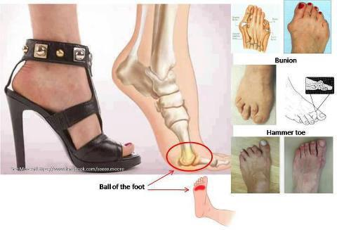 the effects of high heels Other research supports these two claims when arguing that wearing high heels can lead to numerous long term effects, including accidental trauma to multiple areas of the body [4] feminist attitudes [ edit ].
