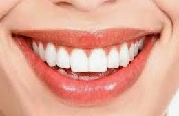 Makanan yang bisa merusak kesehatan gigi