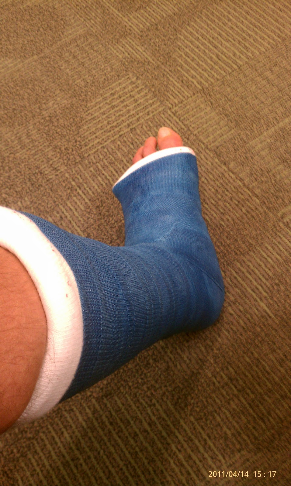 Sprained Ankle Leads to Surgery, CRPS, Amputations, and ...