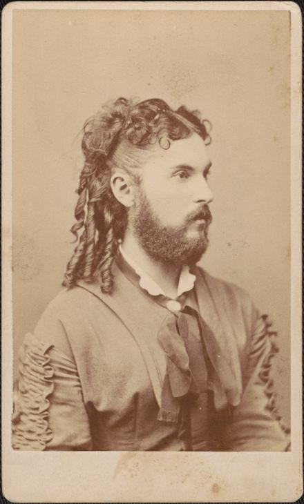Carte De Visite Of A Bearded Woman 1860