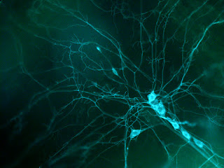 New Insights Into How The Brain Forms Memories