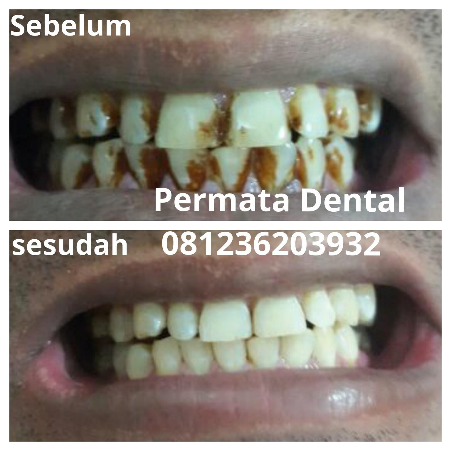 Ahli Gigi Jember Permata Dental 2017 10 29