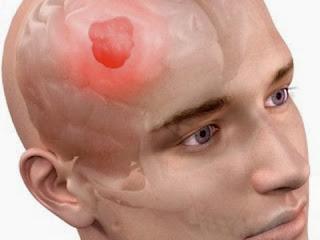 penyakit tumor