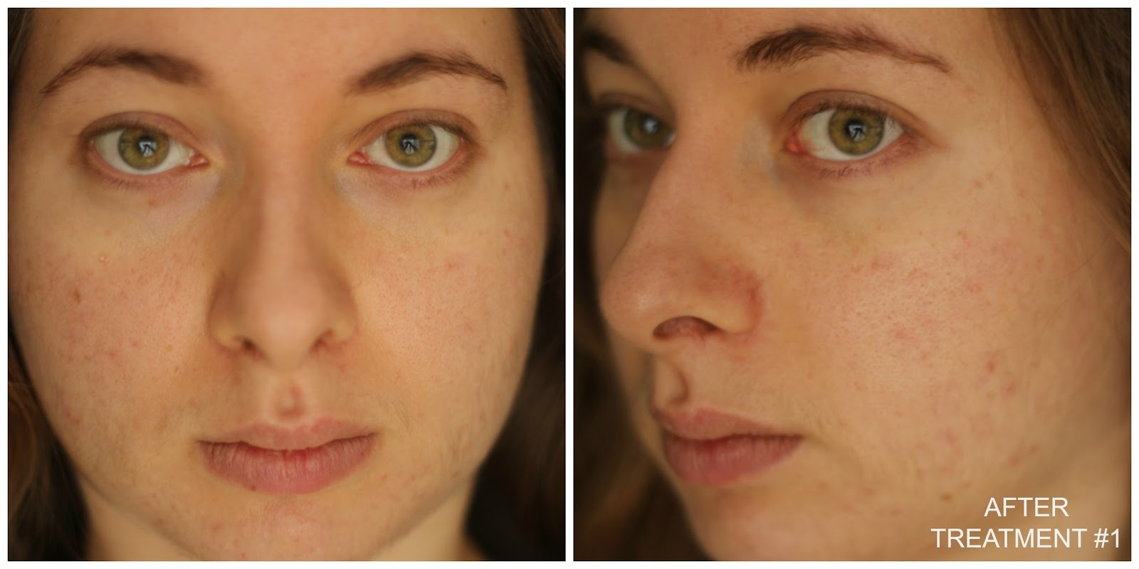 My First Chemical Peel Experience With Epiderma