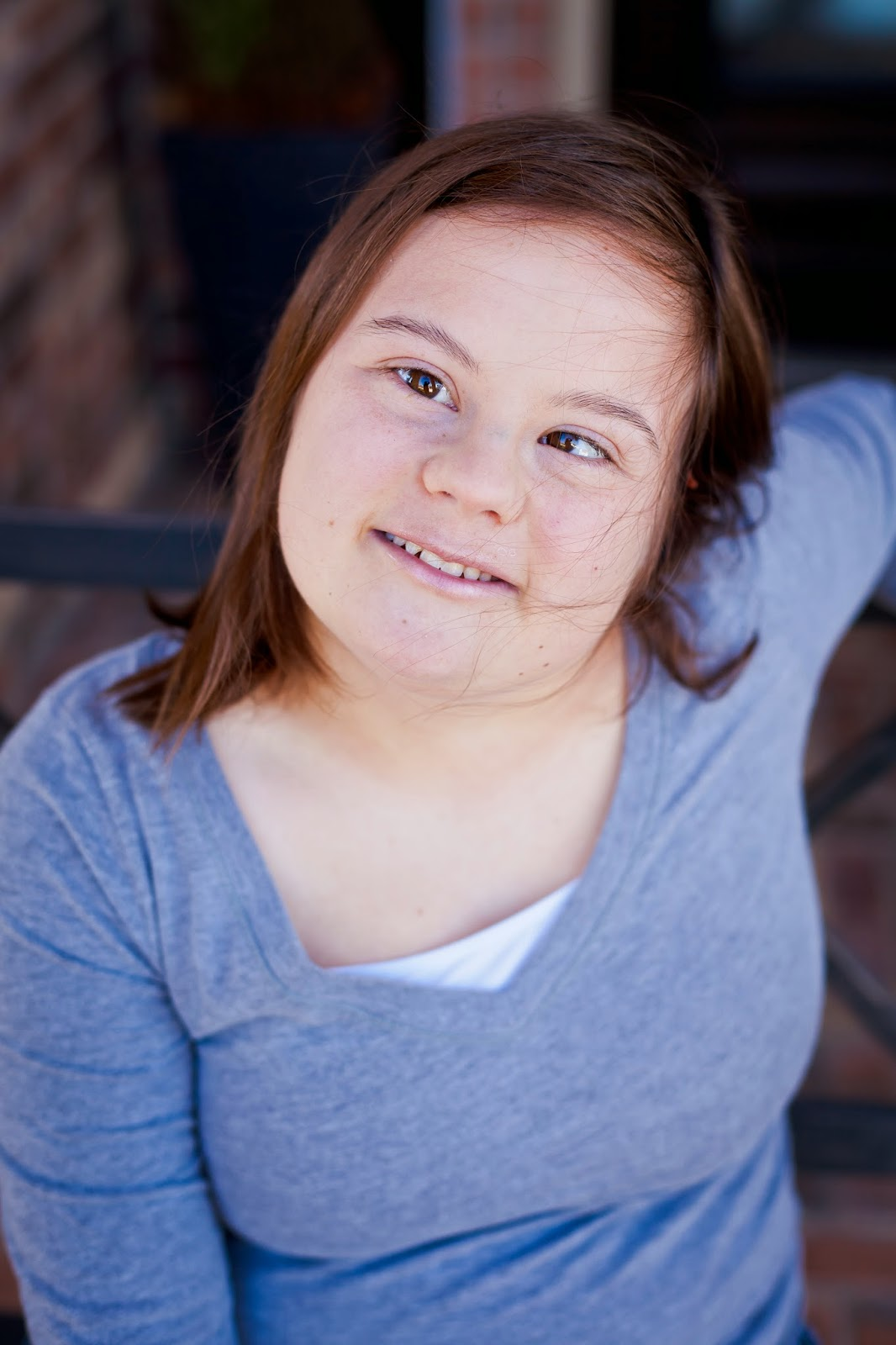 the clinical description of the medical condition down syndrome Down syndrome is a chromosomal condition that is  health care & medical resources national down syndrome  current dilemmas in down syndrome clinical.