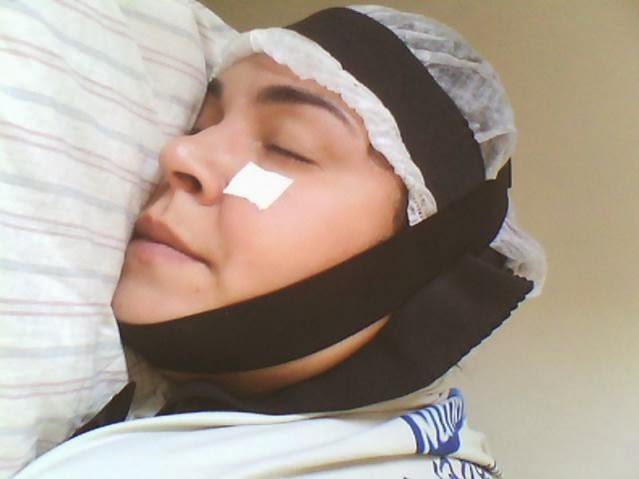 Magnetos em pontos de acupuntura na face e na cabeça sob a faixa