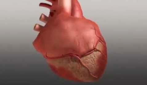 gejala-gejala-utama-penyakit-jantung