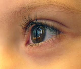 Penyebab dan cara Menghilangkan Lingkar Mata Hitam Secara Alami