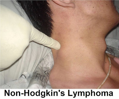 Non-Hodgkin's Lymphoma: Symptoms, Diagnosis And Treatment