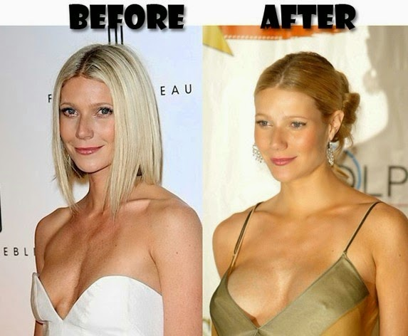 boob jobs before and after