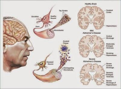 Hasil gambar untuk penyakit Penyakit Creutzfeldt-Jakob (CJD)