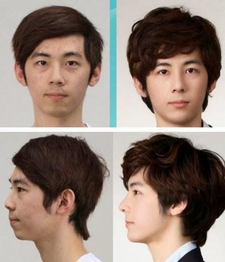 ohsenyum ohsenyum 8 gambar pembedahan plastik wajah