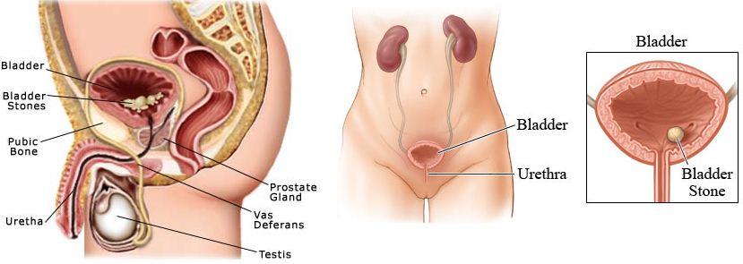 bladder stone
