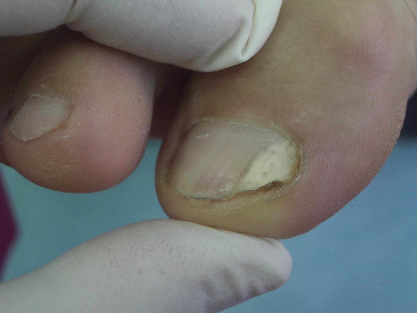 El hongo de las uñas el tratamiento los preparados los barnices baratos pero eficaces
