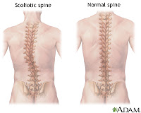 Disturbed Body Image - Nursing Diagnosis for Scoliosis