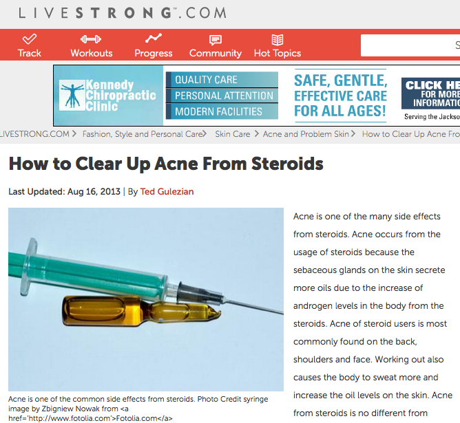 How To Clear Up Acne From Steroids Livestrong