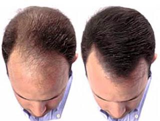 Tipos de Alopecias e Hirsutismo