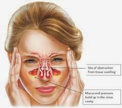 Cara Cepat Menghilangkan Penyakit Sinusitis