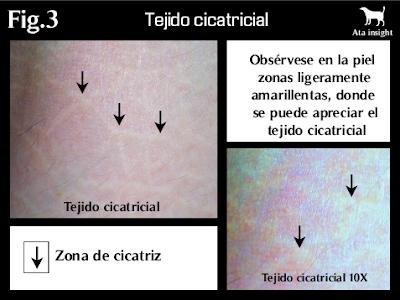 tejido cicatricial