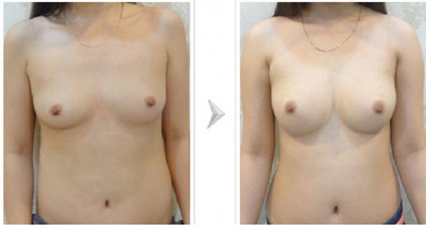 Bí quyết sở hữu bộ ngực đẹp