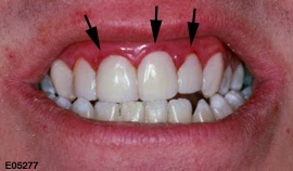 Swollen Gums (Causes, Symptoms and Treatment) | MedRition