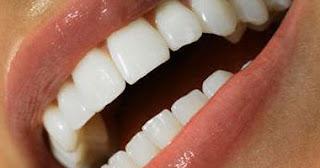 ما أفضل طريقة لتبييض الأسنان؟
