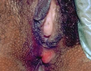 Contoh penyakit sipilis pada wanita