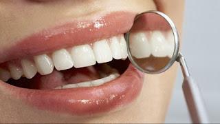 Observação dos dentes por um dentista - alimentos para boca