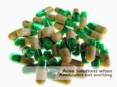 acne solutions when antibiotics not working