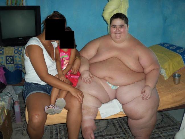 Morre aos 23 anos em Salvador Francisco o jovem que pesava 280 kg