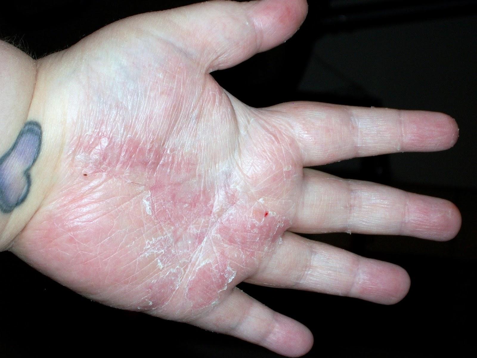 mild psoriasis on hands my site daottk