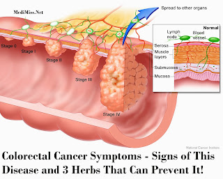 Colorectal Cancer Symptoms - Signs of This Disease and 3 Herbs That Can Prevent It!