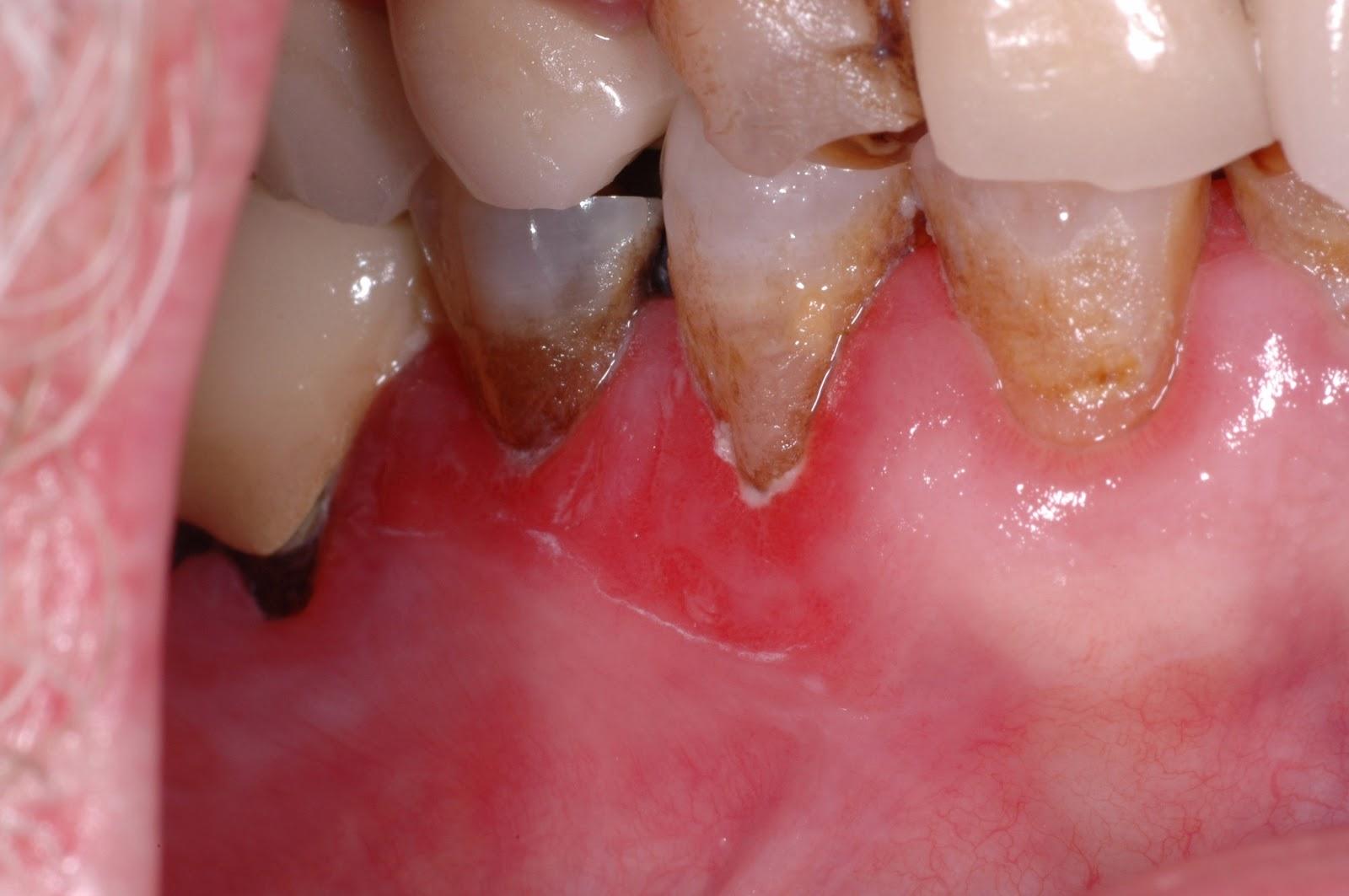 Opinion Oral lichen planus cancer opinion