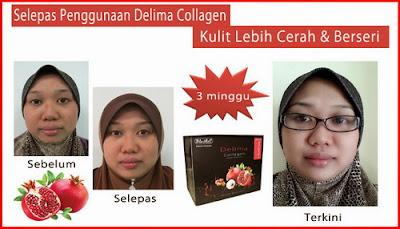 Delima Collagen