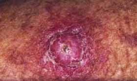 gambar kanker kulit