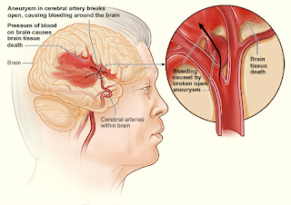 pengobatan herbal stroke